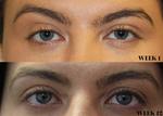 KatieBT Before and after eyelash serum.png