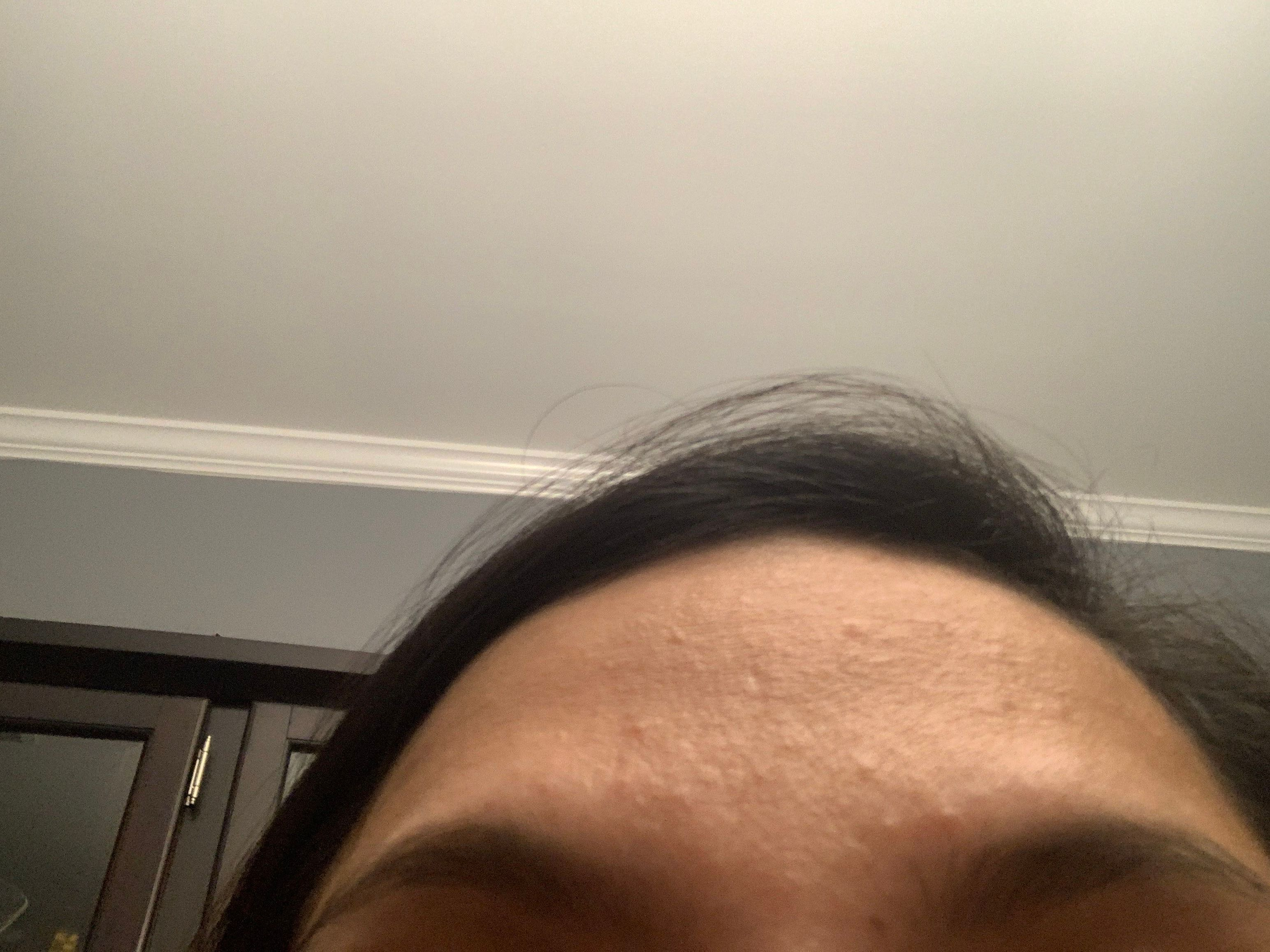 Subclinical forehead get on rid acne of How to