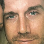 NFL qb ALEX SMITH. Note the visible glands under his eyes.