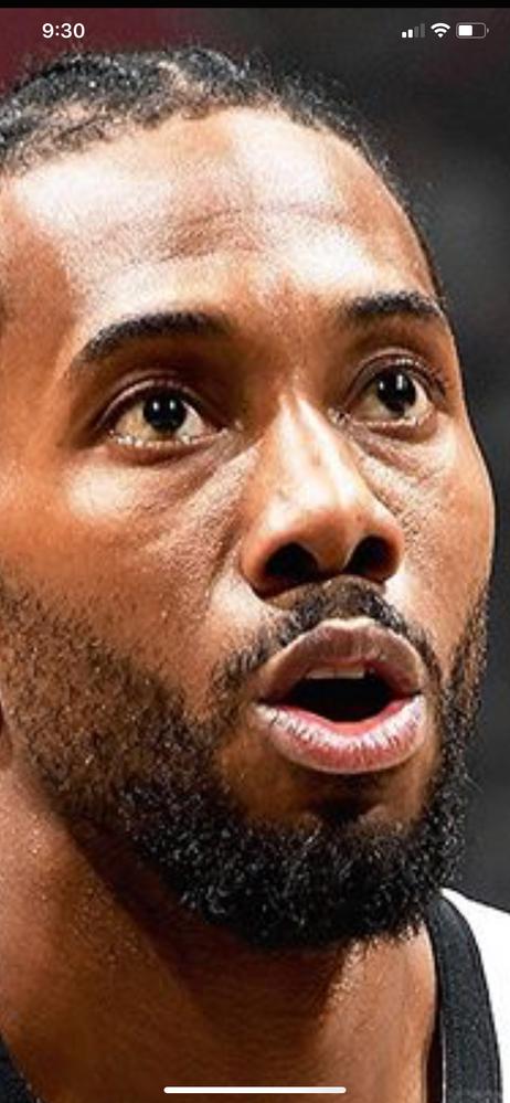 NBA ALL-PRO Kawhi Leonard. Note: visible glands under his eyes.