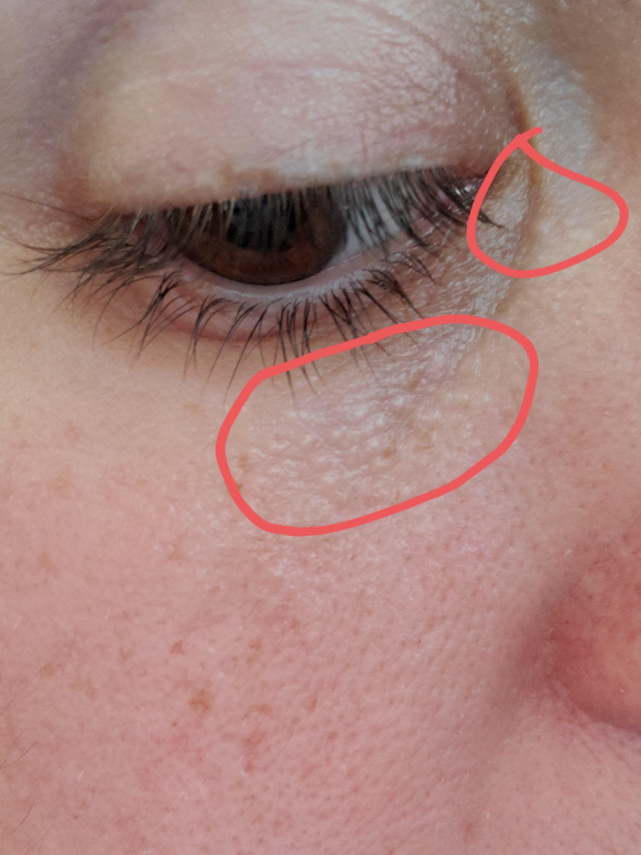 Under Eye Bumps, Not Milia - Page 6 - Beauty Insider Community-3464