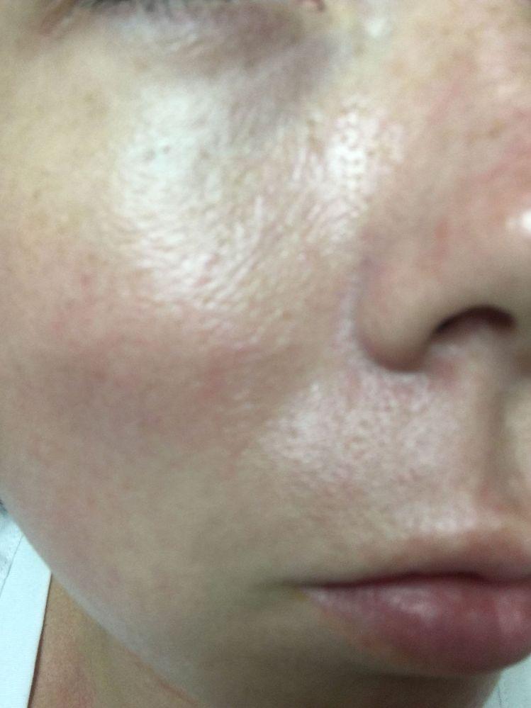 Skin Holes Naturalskins