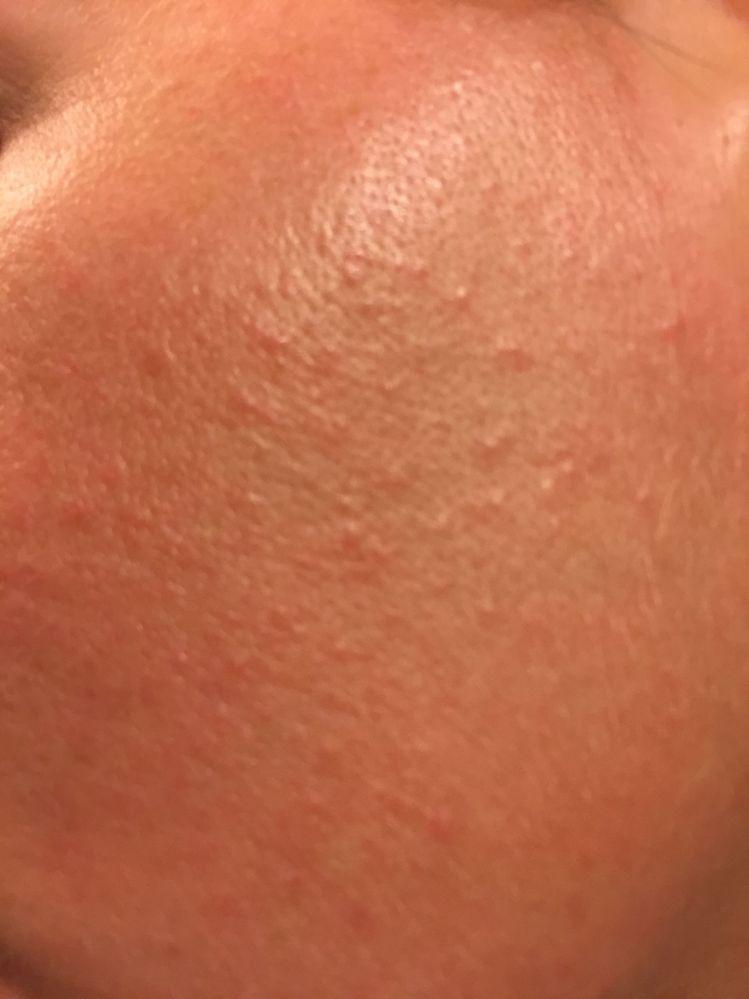 Small rash like bumps all over face - Beauty Insider Community