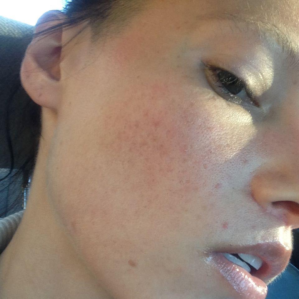 Cystic Acne Everyday Beauty Insider Community