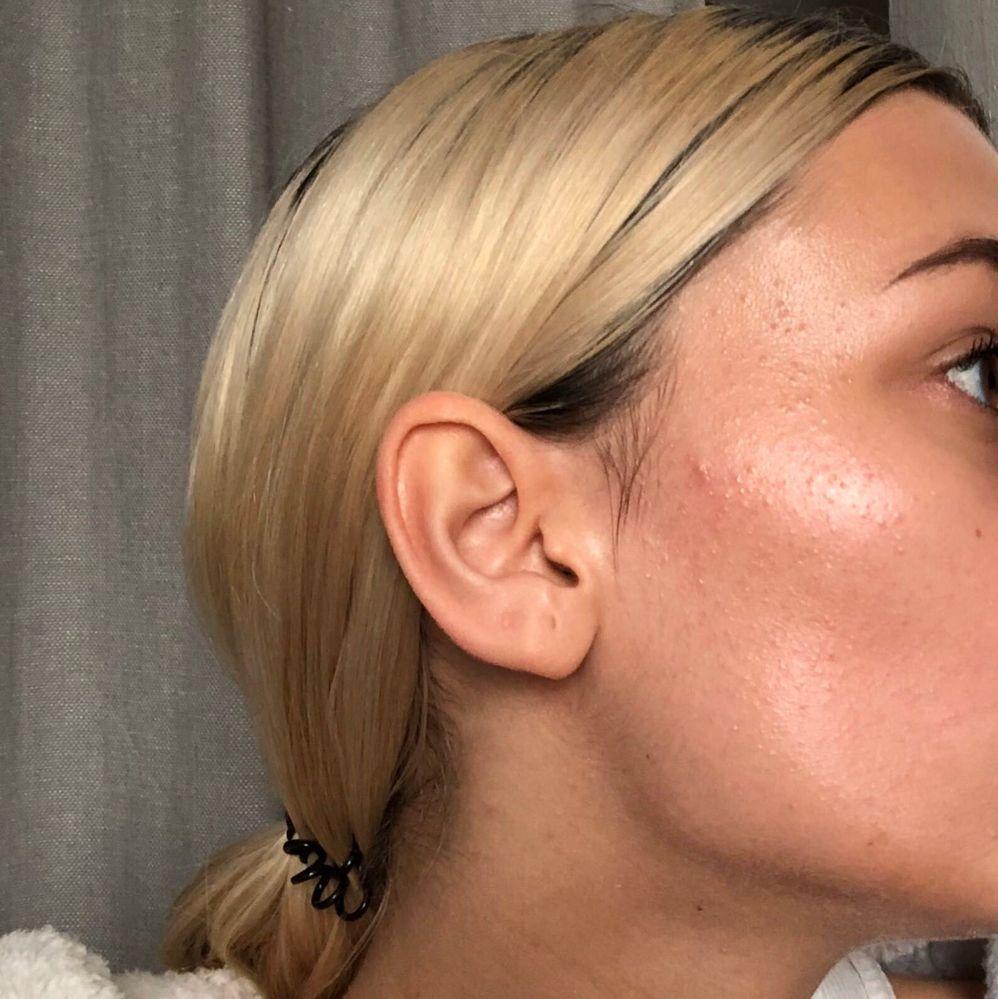 Tiny bumps on my cheeks - Beauty Insider Community