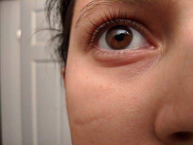 Under Eye Bumps, NOT milia - Beauty Insider Community