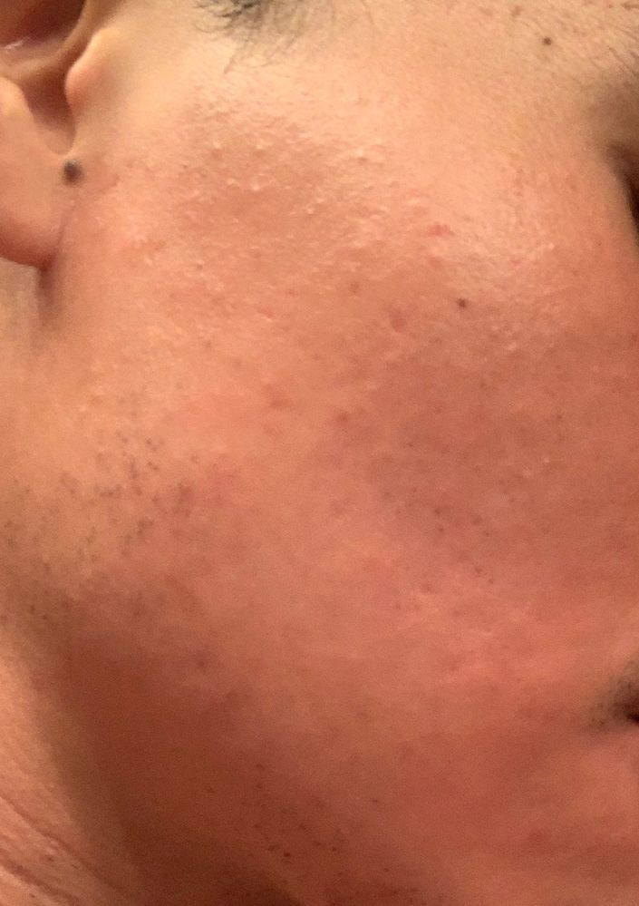 Closed Comedones Or Fungal Acne Beauty Insider Community