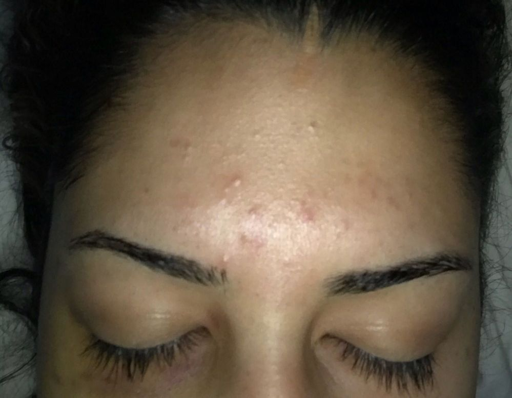 Colorless Bumps On Forehead Beauty Insider Community